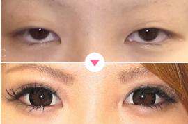 目が小さい